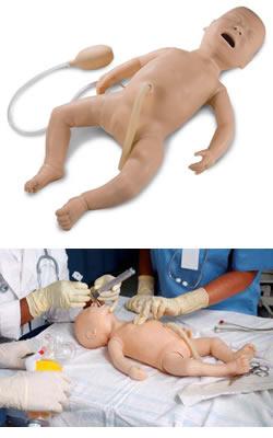 La operación de la reducción del pecho por la asimetría